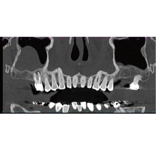 上顎歯科インプラント