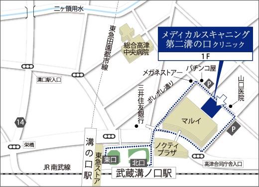 Map_第二溝の口